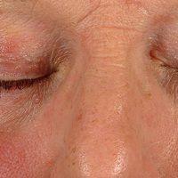 Periorbitale Dermatitis: hier das Pendant zur perioralen Dermatitis.