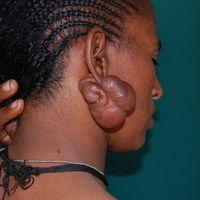 Keloidknoten. Chronisch stationäres Krankheitsbild. Gigantischer Keloidknoten durch wiederholte r...