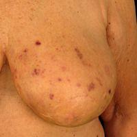Hämatome unter Marcumar-Therapie. Banale Kleinsttraumata führen zu artefiziellen Einblutungen in ...