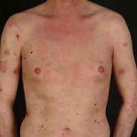Mycosis fungoides:Plaquestadium. 32-jähriger Mann mit multiplen, disseminierten, 1,0-5,0 cm groß...