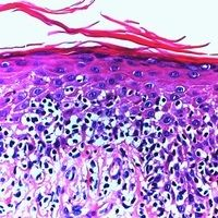 Sonderform: Mycosis fungoides pagetoiderTyp:  Epitheliotropes Infiltratmuster mit geringer kutane...