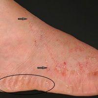 """Tinea pedis """"Mokassin-Typ"""": Wenig entzündliche Mykose des Fußes. Pfeile bezeichnen die proximale..."""