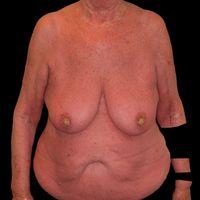 Erythrodermie unter Vemurafenib-Therapie. AusgeprägteKeratosis areolae mammae (acquisita).