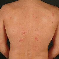 Molluscum contagiosum: disseminierte Mollusca contagiosa bei einem immunkompetenten Patienten. B...