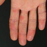 Chilblain-Lupus. Im frühen Stadium mit livid-roten, oberflächenglatten, schmerzhaftenPlaques. K...