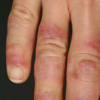 Chilbalin -Lupus Finger_re_2.jpg