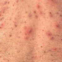 Ake: Ausgeprägte Acne vulgaris