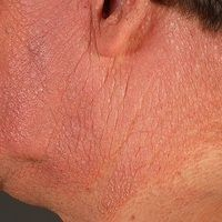 AirborneContact Dermatitis: Chronische,massivjuckende und brennende, lichenifizierteDermatitis...