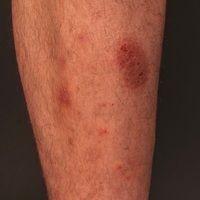 Nummuläre Dermatitis:Seit 6 Monaten persistierende, juckende, erodierte, exkoriierte, z.T. verk...