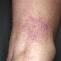 Erythema chronicum migrans: vor 14 Tagen Zeckenstich. Persistierende Stichreaktion mit kontinuie...