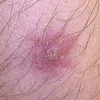 Akute, 1 Tag alte Insektenstichreaktion mit zentraler Blasenbildung. An Symptomen: leichter Juck...