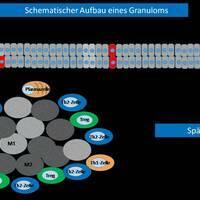 Schematischer Aufbau eines kutanen Granuloms (Schema variert n. E.v. Stebut). Das späte Granulom ...