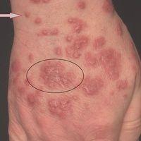 Dermatose akute febrile neutrophile: akutes, exanthematisches Krankheitsbild mit Befall von Ges...