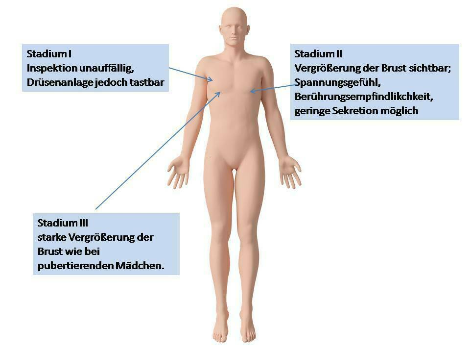 Prosztata a fizioterápia kezelésének