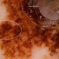 "Melanom malignes:Auflichtmikroskopie. Pfeile: amelanotische Tumorproliferate mit bizarren ""Tumor..."