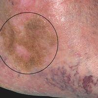 Corona phlebectatica. 63 Jahre alte Patientin mit bekannter CVI. Ausgeprägte retikuläre Varizenbi...