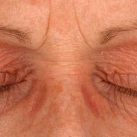 Kontaktallergisches Lidekzem.Zunächst rezidivierender, seit mehreren Monaten permanente Symptoma...