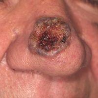 Ulkus der Haut: ulzeriertes Basalzellkarzinom der Nase.