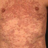 """Chronische """"Graft-versus-host Disease"""" mit Lichen planus-artigem Exanthem."""