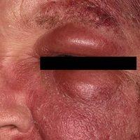 Akutes Erysipel mit Fieber (Schüttelfrost), Leukozytose, ASL-und CRP-Erhöhung, regionärer Lymphkn...