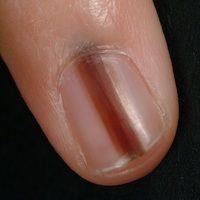 Melanonychia striata longitudinalis. Ca. 0,4 cm breiter, dunkelbrauner Streifen des Nagels.Nagel...