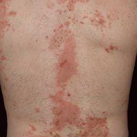 Epidermolysis bullosa acquisita: generalisiertes Krankheitsbild (DD. Bullöses Pemphigoid)mit fri...