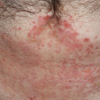 Epidermolysis bullosa acquisita: generalisiertes Krankheitsbild mit frischen Erythemen, spontanen...