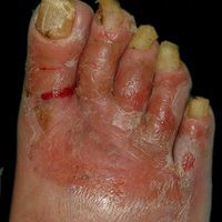 Gramnegativer Fußinfekt: flächige, nässende Erosionen, Mazeration der Zwischenzehenräumen, Onych...