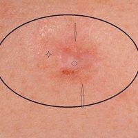 Basalzellkarzinomsklerodermiformes (Detailaufnahme): Pfeile markieren randliche bizarreTumorgef...