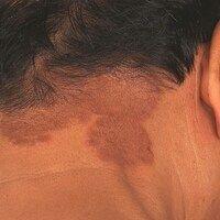 Granulom aktinisches: flächenhafte wenig infiltrierte, nicht symptomatische, konfluierte Plaque...