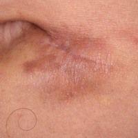 Dermatofibrosarcoma protuberans: derber, plattenartig die Haut infiltrierender, unscharf bgrenzte...