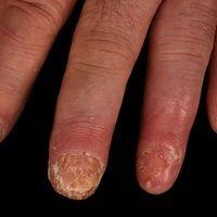Acrodermatitis continua suppurativa:ausgeprägte, schmerzhafte, chronische,akrale, pustulöse D...