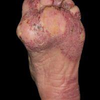 Chilblain Lupus: flächige, schmerzhafte, scharf begrenzte Rötungen mit Schuppenauflagerungen an F...
