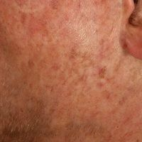 Generalisierte cGVHD:chronische, generalisierte, poikilodermatische Hautveränderungen,mit zirku...