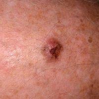 Fibroxanthom atpyisches:rasch wachsender, zentral ulzerierter, schmerzloser Knoten bei einem Man...