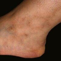 Ausgeprägte Livedo racemosa: Zwischenbefund nach 2 weiteren Jahren (Zeitraum der klinischen Verla...