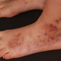 Ausgeprägte Livedo racemosa: Zwischenbefund 2 Jahre später (Zeitraum der klinischen Verlaufskont...
