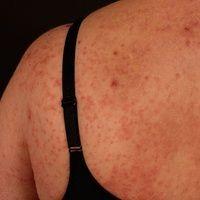 Sweet-Syndrom: rötlich-livide, sukkulente, druckdolente, infiltrierte, solitäre und z.T. Papeln, ...