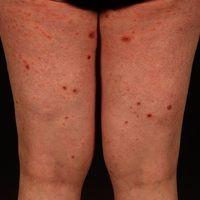 Pityriasis lichenoides et varioliformis acuta: nach fieberhaftem Infekt, akut auftretenes Exanthe...