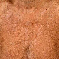 Pityriasis versicolor alba: spritzerartige und feinfleckige Depigmentierungen mit feiner Oberfläc...