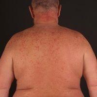 Dermatose, akute febrile neutrophile (Sweet-Syndrom): plötzlich aufgetrene entzündliche, sukkulen...
