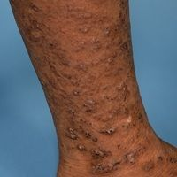 Hypereosinophilie-Syndrom: Detailaufnahme