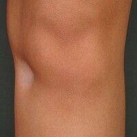 Lipoatrophie, lokalisierte nach Glukokortikosteroid-Injektionen. Übersichtsaufnahme: 2,5 x 3,0 cm...