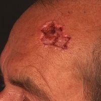 Basalzellkarzinom ulzeriertes: seit Jahren bestehende Hautveränderung. Initial symptomloses Knötc...