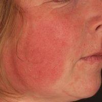 """Eccema symmetricum faciale: Zugrunde liegende atopische Dermatitis , sog.""""Tachau Bäckchen""""."""