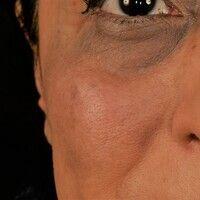 Naevus fuscocoeruleus ophthalmomaxillaris. Unregelmäßig begrenzte, flächenhafte, braune bis schwa...
