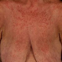 Makulo-papulöses Exanthem bei systemischem Lupus erythematodes.