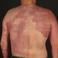 Vascular twin nevus: Kombination eines Naevus flammeus mit einem Naevus anaemicus. Eingekreist ei...