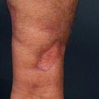 Necrobiosis lipoidica: Seit mehreren Jahren bestehende Necrobiosis lipoidica bei vorbekanntem Dia...