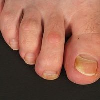 Onycholyse: idiopathische Onycholyse mit nachwachsendem Nagel. Die Zehen 3 und 4 zeigen eine Quer...
